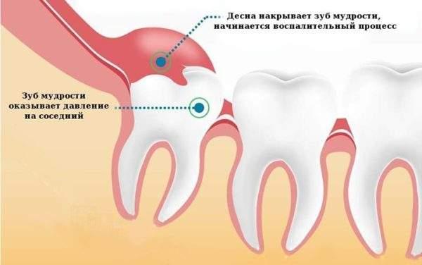 отек после удаления зуба мудрости сколько по времени держится