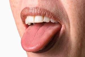 отек языка с отпечатками зубов на боковых поверхностях языка