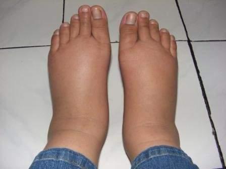 отеки на ступнях ног при надавливании остается долго ямка
