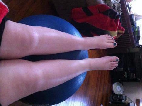 отеки ног после кесарева сечения за сколько дней проходят отеки