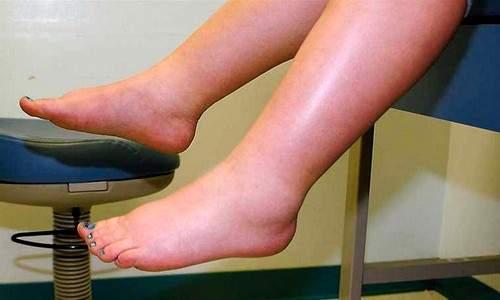 отекли ноги в щиколотке что делать в домашних условиях
