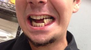 перелом челюсти со смещением последствия срок лечения
