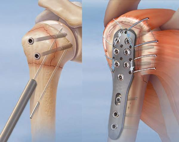 перелом плечевой кости руки лечение срок срастания