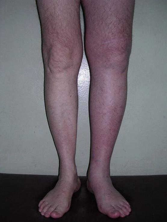 после снятия швов на ноге не сходит отек