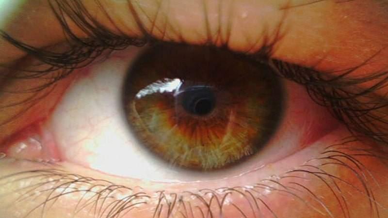 укол в глаз от отека сетчатки глаза где лучше
