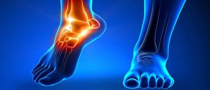 Болит нога в районе щиколотки отека нет