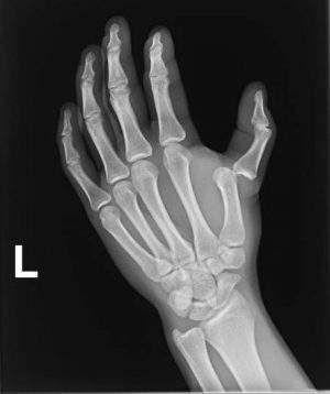Как разработать палец на руке после вывиха?