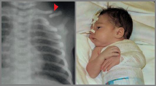 Что делать при переломе ключицы у новорожденного?