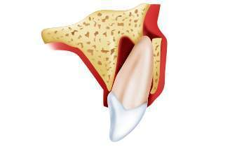 Вывих зуба у ребенка в 2 года