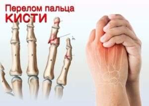 Первая помощь при открытом переломе пальца руки
