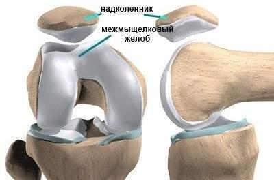 При вывихе коленной чашечки какие связки нарушаются