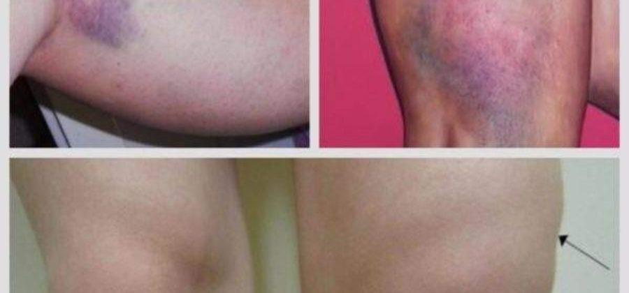 Старая гематома на ноге после ушиба не проходит