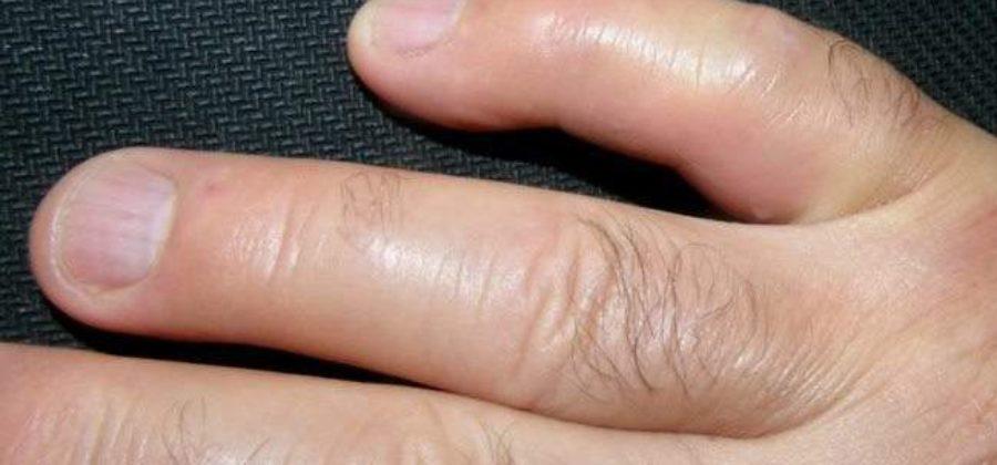 Большой палец на руке отек и не сгибается