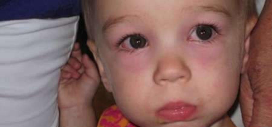 Отекло и покраснело верхнее веко на одном глазу у ребенка