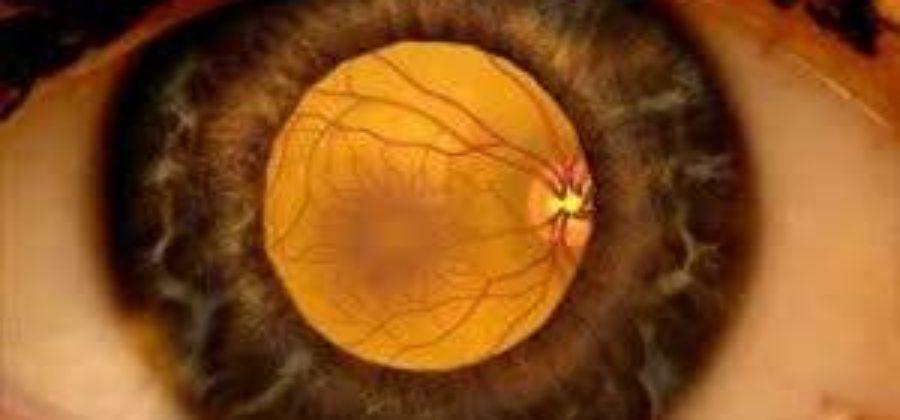Отек сетчатки глаза лечение в домашних условиях