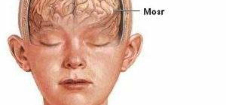 Гематома головы после ушиба лечение народными средствами