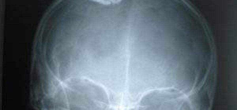 Признаки и первая помощь при переломе черепа