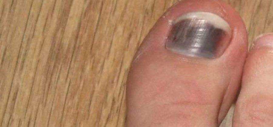 Синяк под ногтем большого пальца ноги без ушиба