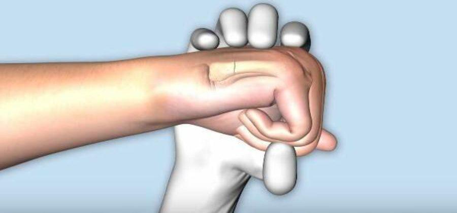 Синеет палец на руке без ушиба