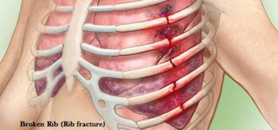 Могут ли долго болеть ребра после перелома