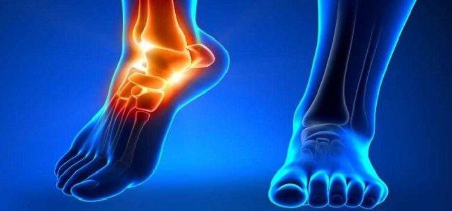 Отек вокруг щиколотки и вверх по ноге с болью