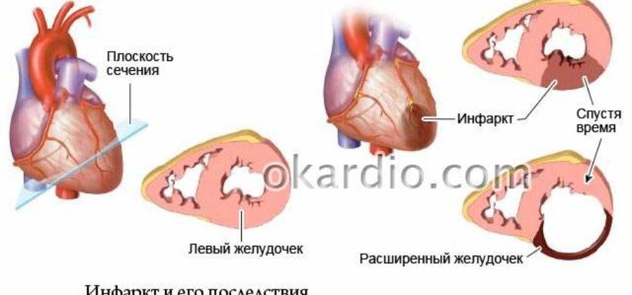 Обширный инфаркт с отеком легких последствия шансы выжить
