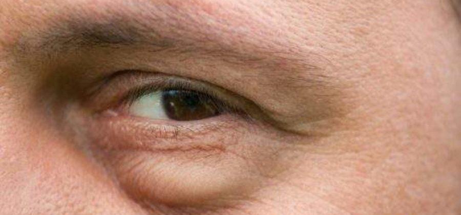 Отек нижнего века одного глаза у ребенка причины