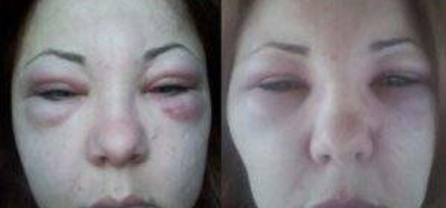 После уколов ботокса отеки под глазами что делать