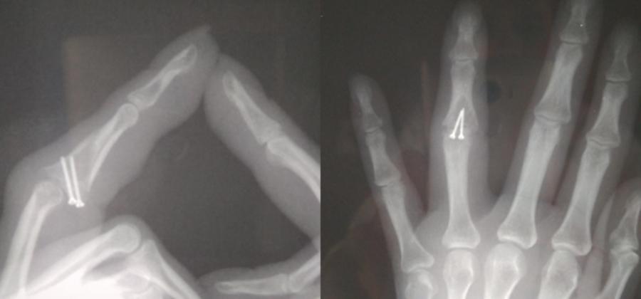 Что делать если перелом пальца сросся неправильно?