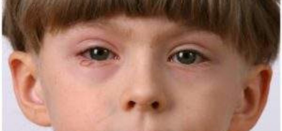 Отекли глаза у ребенка при температуре и орви