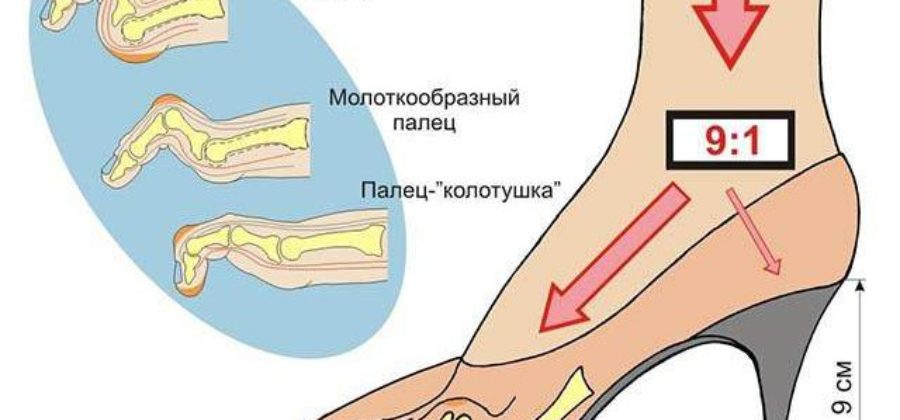 Ампутировали палец на ноге теперь отек ступни что делать