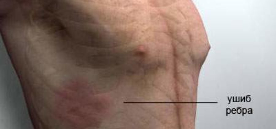 Какая мазь от ушибов лучше от боли в ребрах?