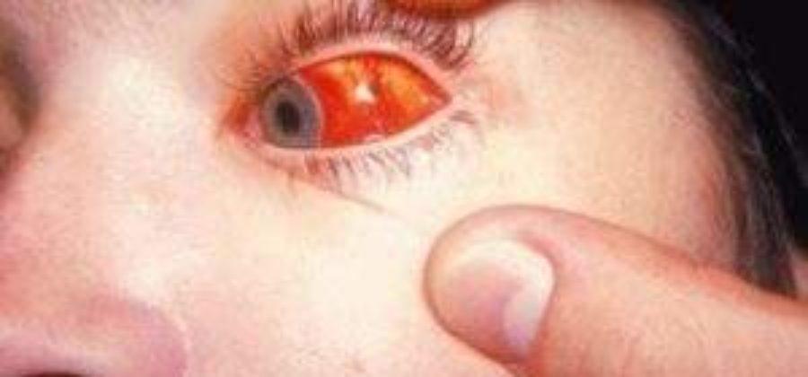 Капли при ушибе глазного яблока с кровоизлиянием