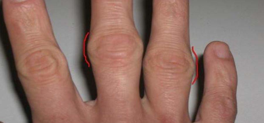 Шишка на суставе пальца руки после ушиба