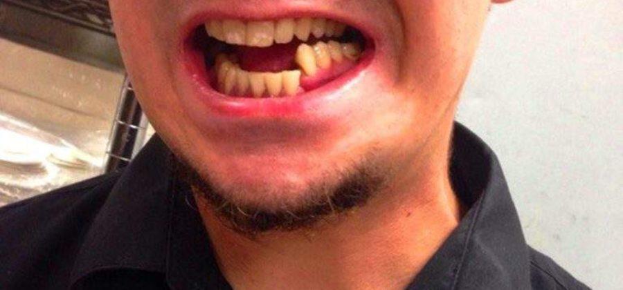 Питание после снятия шин после перелома челюсти