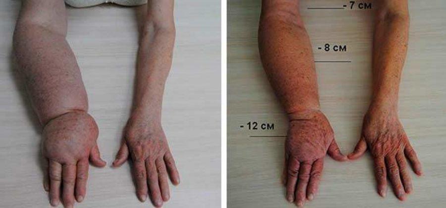 Отек руки после удаления молочной железы через 6 лет