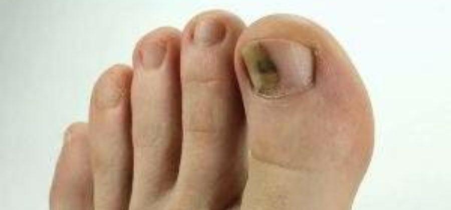 После ушиба слез ноготь на большом пальце ноги чем лечить