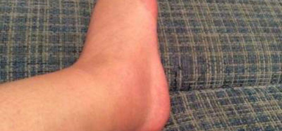 Отек и боль в ноге возле щиколотки с наружной стороны