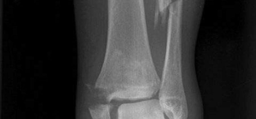 Растяжка при переломе ноги для чего они