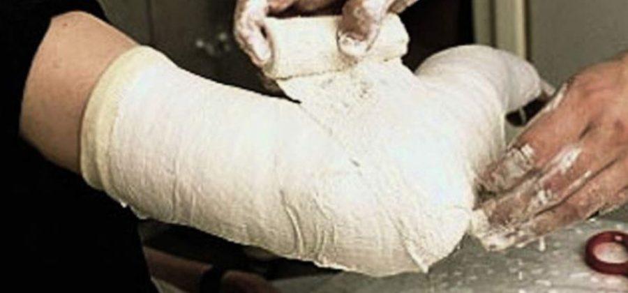 Наложение гипсовой повязки при переломе плечевой кости