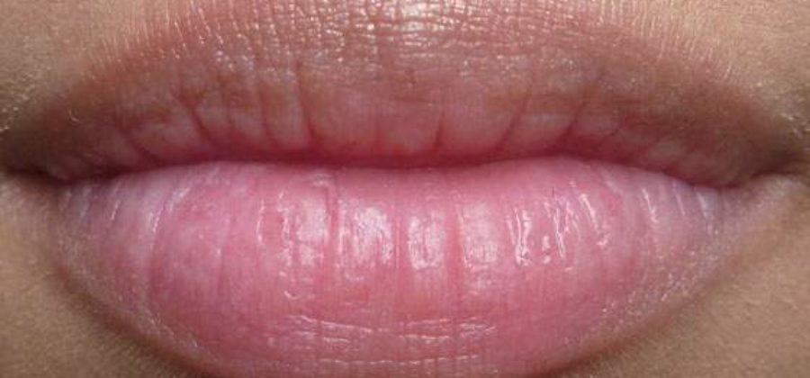 Опухает губа без причины отек держится два часа