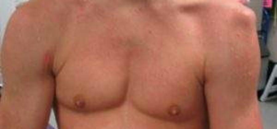 Нужен ли гипс при переломе шейки плеча