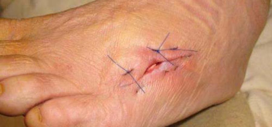 Чем лечить свищ на ноге после перелома