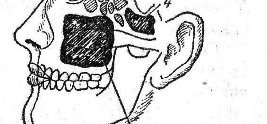 Пристеночный отек слизистой оболочки ячеек решетчатого лабиринта