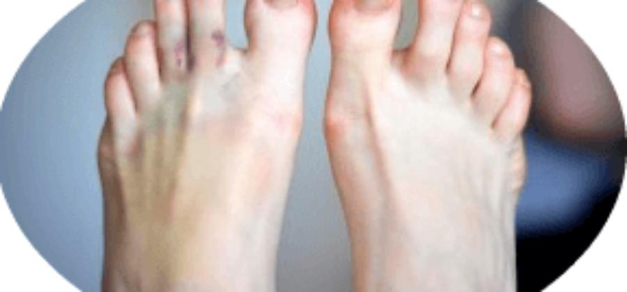 Как определить сломан ли палец на ноге или это ушиб?