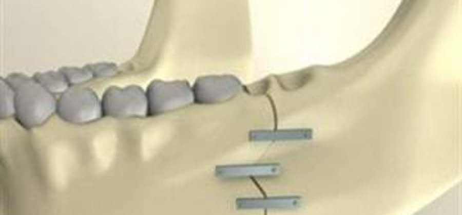 Сколько стоит шинирование при переломе нижней челюсти