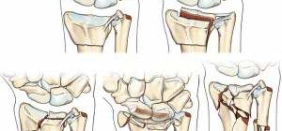 Последствия после перелома лучевой кости со смещением