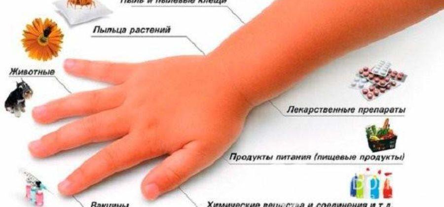 Ангионевротический отек что это такое симптомы лечение