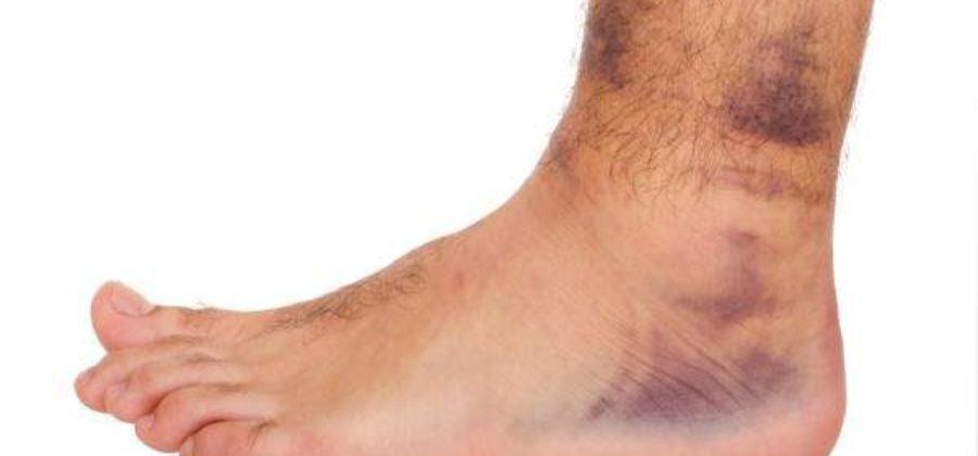 Антибиотик при воспалении мягких тканей ноги после ушиба