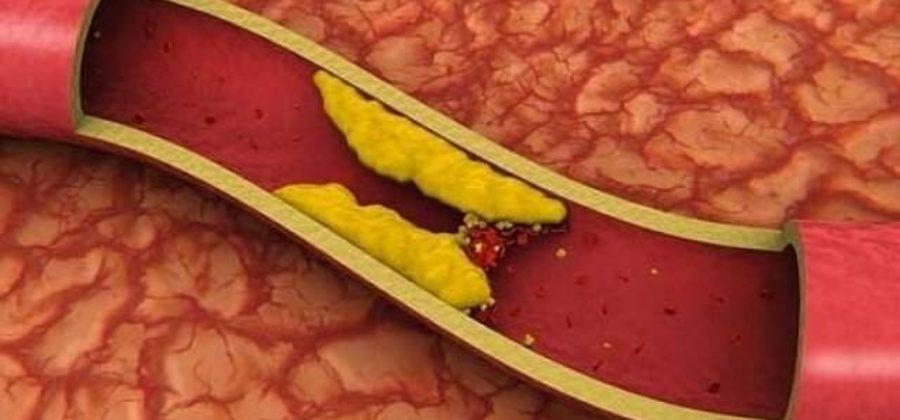 Как улучшить кровообращение в ногах после перелома?